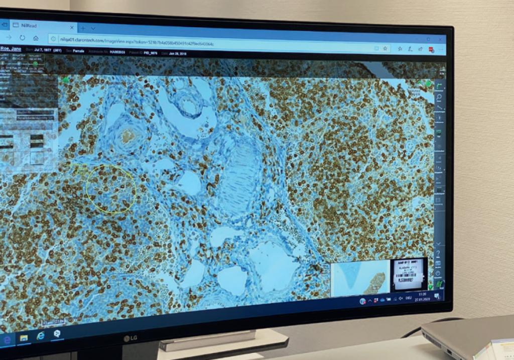 Vom Mikroskop zum Algorithmus: effizientere Diagnose und bessere Ergebnisse